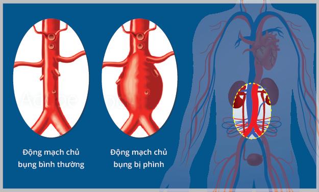 Tìm hiểu phình động mạch chủ bụng