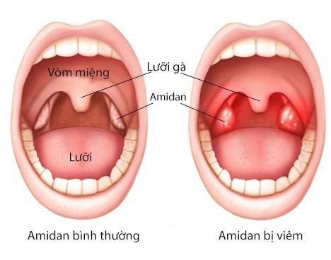 Amidan và những điều bạn cần biết!