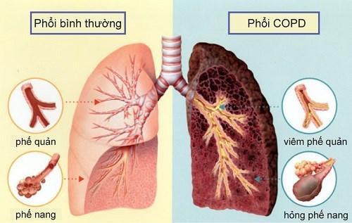 7 LỜI KHUYÊN DÀNH CHO BỆNH NHÂN BỆNH PHỔI TẮC NGHẼN MẠN TÍNH ( COPD)