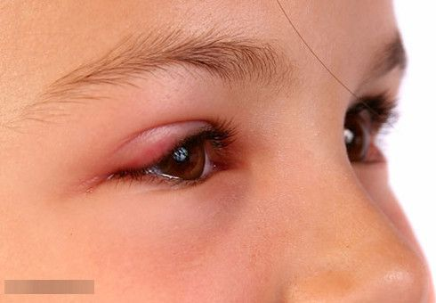Chắp và lẹo mắt: nguyên nhân triệu chứng và cách điều trị